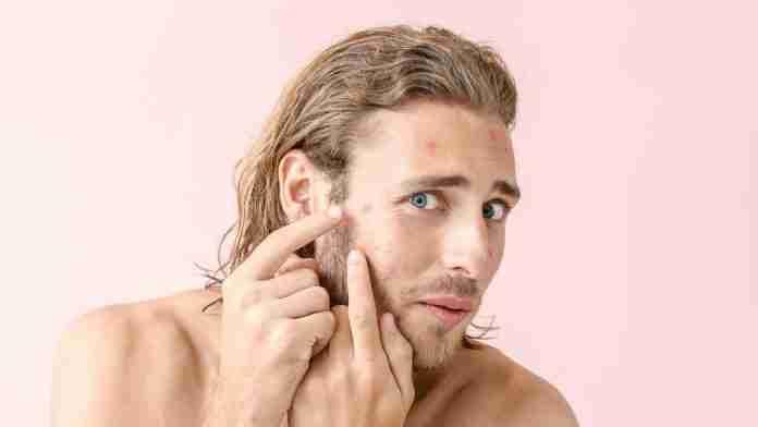 6 Common Skin Problems Men Face | Vaniday | magazine.vaniday.com